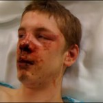 Seattle officials finally file hate crimes charges in attack on 16 year old.
