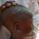 Child sacrifice makes a huge comeback in Africa.